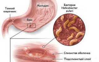 Запах изо рта от желудка: лечение народными средствами и лекарствами