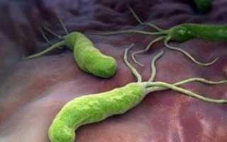 Антитела к Helicobacter pylori IgG, IgM, IgA – положительные: что это значит