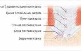 Грыжа кишечника – виды, причины развития, симптомы, способы лечения