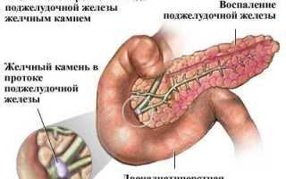 Почему появилась отдающая в спину резкая и острая боль в области желудка