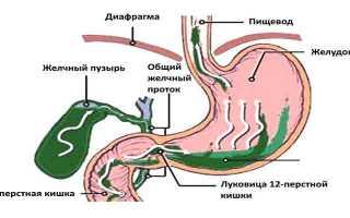 Катаральный рефлюкс гастрит: симптомы и лечение