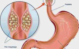 Рубцовые стриктуры пищевода. Этиология. Патогенез. Клиника, диагностика, лечение.