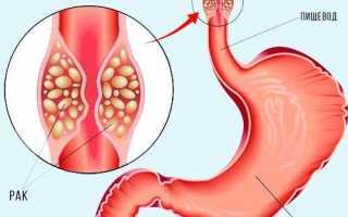 Каковы причины болей за грудиной в центральной области пищевода и как устранить неприятный симптом?