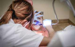 Почему возникает дисбактериоз полости рта, чем он опасен и как его лечить?