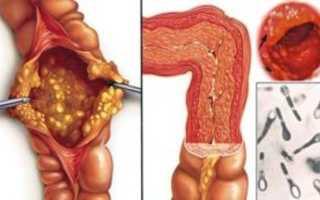 Симптомы, лечение и питание при спастическом колите кишечника