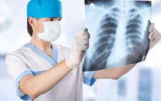 Рентгеноскопическое исследование пищевода и желудка – как подготовиться и стоит ли опасаться?