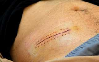 Реабилитация после удаления аппендицита