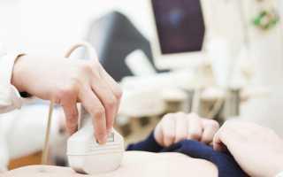 Диагностика панкреатита острого и хронического, анализы, лечение