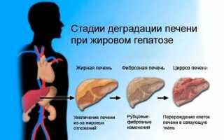 Чем опасен жировой гепатоз 1 степени?