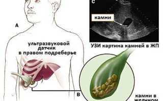 Подготовка к УЗИ желчного пузыря с определением функции: диета, рекомендации