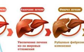 Восстановление печени после алкоголя в домашних условиях, препараты для очищения печени