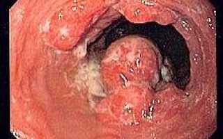 Рак пищевода 3 стадии: прогноз, симптомы рака пищевода 3 стадии, сколько живут при раке пищевода 3 стадии