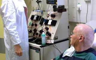 Химиотерапия при раке толстой кишки: схемы, осложнения, прогноз