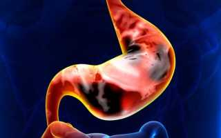 Операция по удалению желудка (гастрэктомия): как проводится, показания при раке, полипах и язве
