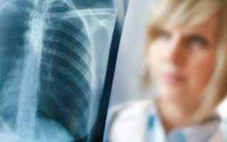 Диафрагмальная грыжа пищеводного отверстия: симптомы и лечение