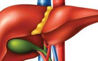 Расслоение стенки желчного пузыря, острое воспаление