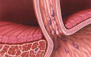 От чего возникает пищеводное кровотечение и как его вылечить?