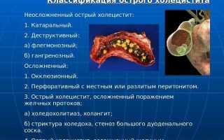 Деструктивный холецистит — причины, симптомы и лечение