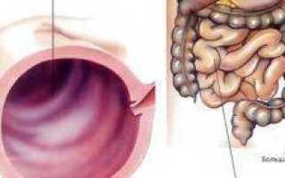 Причины воспаления желудочно-кишечного тракта. Воспаление ЖКТ: симптомы и эффективное лечение