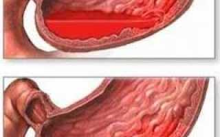 Желудочно-кишечное кровотечение: первая помощь, причины, симптомы, признаки, лечение, последствия