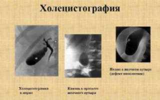 Пероральная холецистография или рентген желчного пузыря — подготовка, показания, последствия