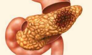 Проблемы с поджелудочной железой: симптомы и способы их устранения
