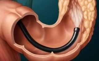 Что такое колоноскопия толстой кишки: очищение кишечника, описание исследования