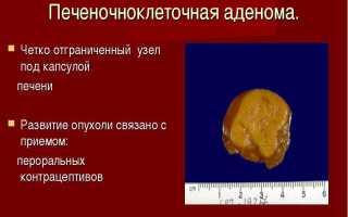 Что из себя представляет аденома печени и как проявляется