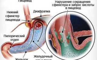 Список лекарств от изжоги и жжения для нормализации работы желудка
