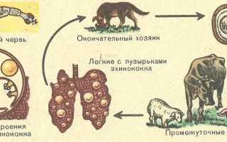 Эхинококкоз легких, симптомы и причины, лечение заболевания