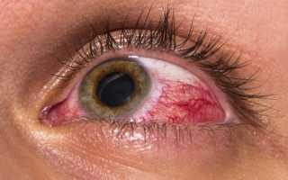 Симптомы и лечение тениоза у человека, профилактика заболевания