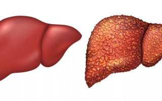 Пониженные и повышенные печеночные ферменты в крови