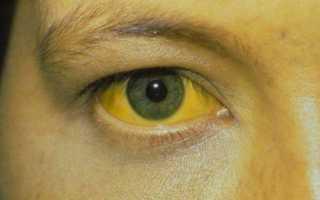 Серологические методы диагностики вирусного гепатита С