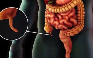 Симптомы и признаки аппендицита у мужчин