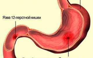 Можно ли есть масло при язве желудка?