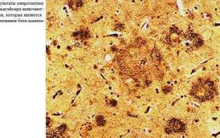 Старческий амилоидоз: от тетрады Шварца до наших дней