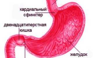 Стеноз двенадцатиперстной кишки симптомы