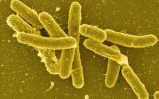 Микробиология брюшного тифа