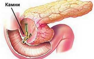 Могут ли быть камни в поджелудочной железе: симптомы и лечение