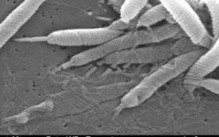 Как можно сдать анализ на хеликобактер пилори, подготовка к сдаче
