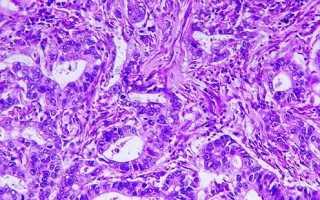 Низкодифференцированная аденокарцинома желудка: симптомы и степени развития
