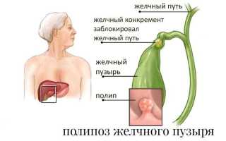 Надо ли удалять полипы желчного пузыря: показания к операции и 4 метода удаления