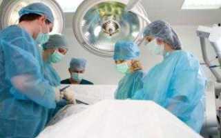 Удаление полипов в кишечнике: виды операций, послеоперационное восстановление, цены