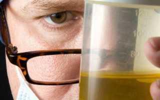 Как правильно сдавать анализ мочи на диастазу? Норма и расшифровка показателей