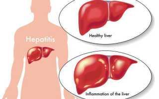 Диагностика гепатита В — современные способы исследования печени