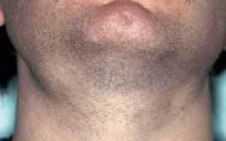 Подчелюстная слюнная железа и ее болезни