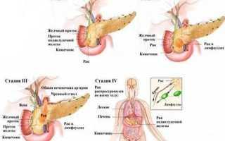 Рак поджелудочной железы: кто наиболее подвержен заболеванию, современный подход к лечению