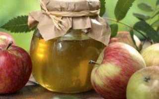 Изжога — поможет яблочный уксус. Народные способы быстро избавиться от изжоги