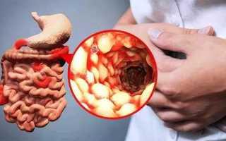 Развитие энтерита у взрослых – особенности диагностики