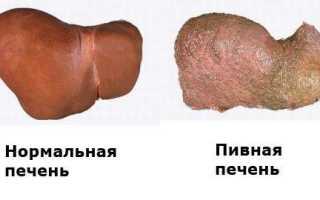 Препараты для восстановления печени после алкоголя